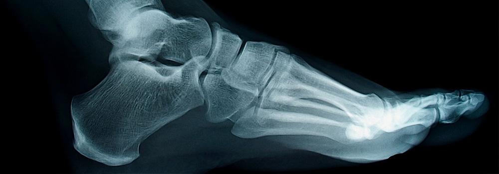 Основні причини розвитку плоскостопості у дитини. Дитяче ортопедичне взуття - Babyfoot
